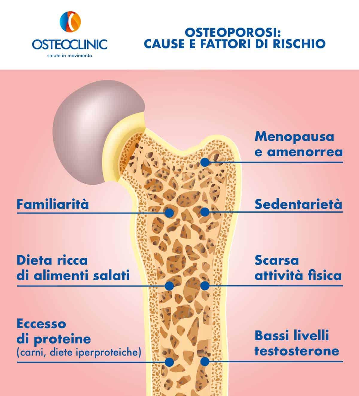 Osteoporosi cura cause fattori di rischio