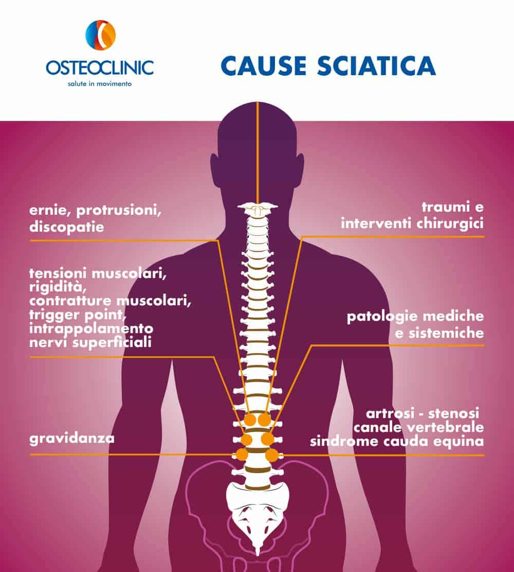 rimedi sciatica cause